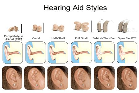 Hearing Aid Styles & Technology