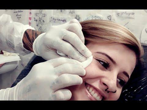 Colocando um microdermal no rosto - Com Maycoln Tarasevic