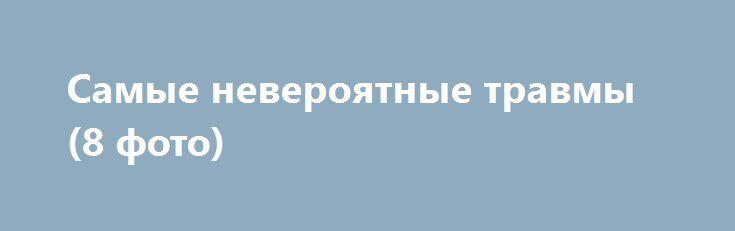 Самые невероятные травмы (8 фото) http://billionnews.ru/lud/4406-samye-neveroyatnye-travmy.html  Человек по защищенности уступает многим представителям животного мира. Но это – кажущаяся беззащитность. Человеческое тело гораздо прочнее и сильнее, чем мы думаем. Катастрофы, аварии, сверхнагрузки, падения и стихийные бедствия уносят многие человеческие жизни, но при этом и в таких ужасных ситуациях погибают далеко не все.