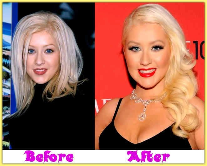Christina Aguilera Plastic Surgery Breast Implants, Nose Job, Lip ... Always interesting what you can find when you type in plastic surgery and other related terms