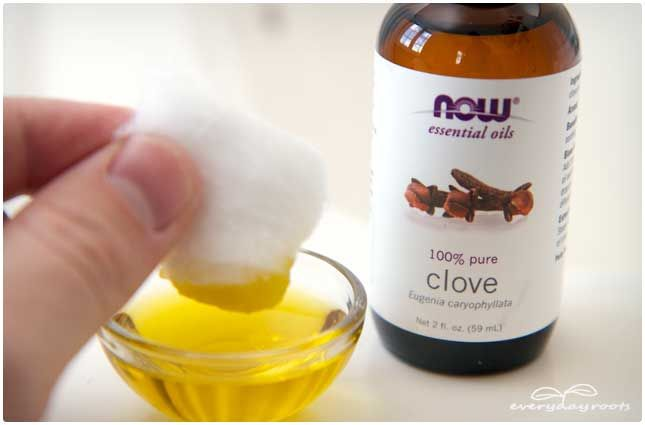 Clove Toothache Compress for Pain Relief | Everyday Roots