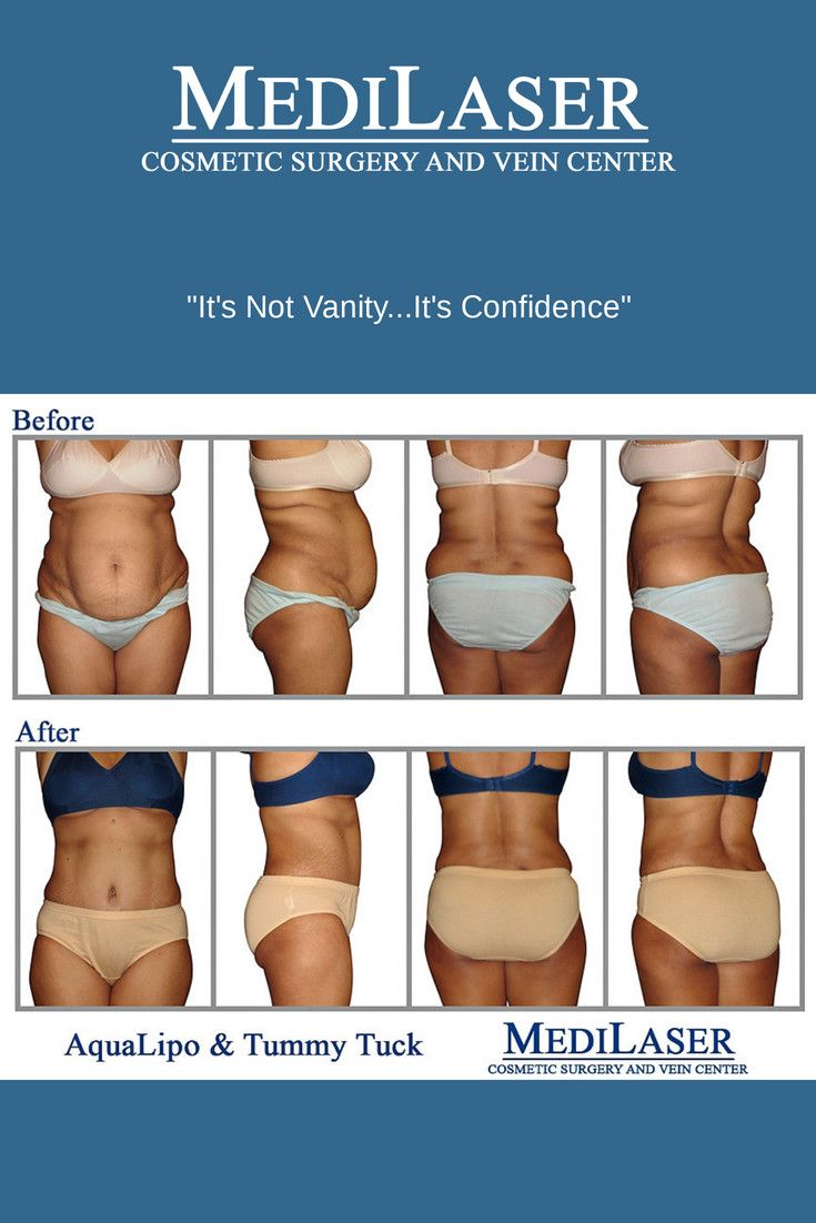 FRISCO-TEXAS-COSMETIC-SURGERY-BEFORE-AFTER-TUMMY-TUCK-LIPOSUCTION