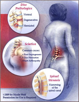 Sacroiliac Joint Degenerative Arthritis | Low back pain