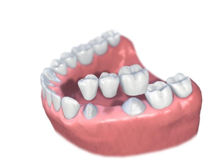 3 tooth bridge
