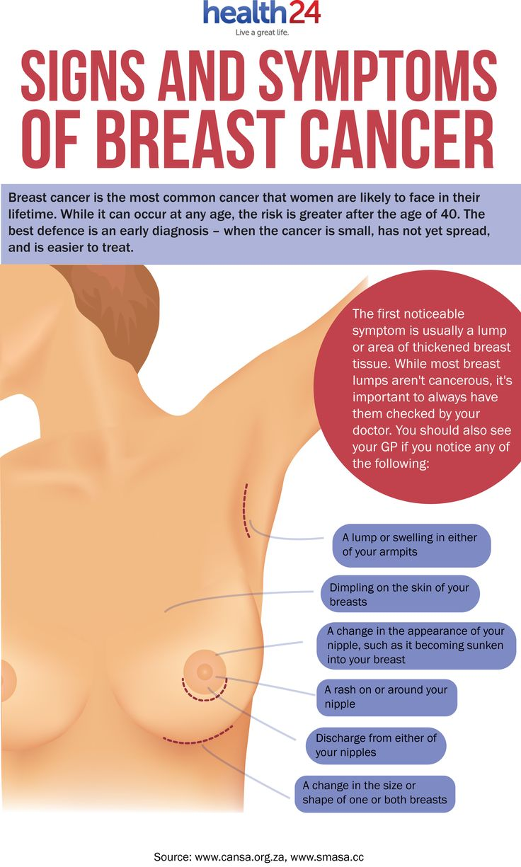 Infographic :Signs and symptoms of breast cancer | www.health24.com