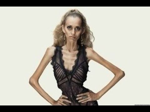 Dying To Be Thin - Anorexia Nervosa Documentary - # ...