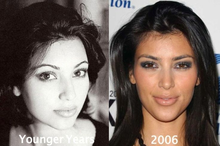 Kim Kardashian Before Plastic Surgery kim kardashian before plastic surgery butt and breast implants Kim Kardashian Nose Job Before and After, Kim Kardashian Surgery Transformation, Kim Kardashian Plastic Surgery Scars