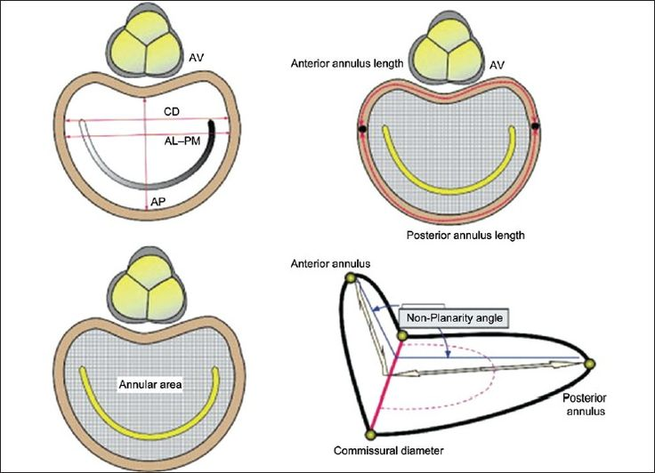 mitral valve coaptation point google search mitral. Black Bedroom Furniture Sets. Home Design Ideas