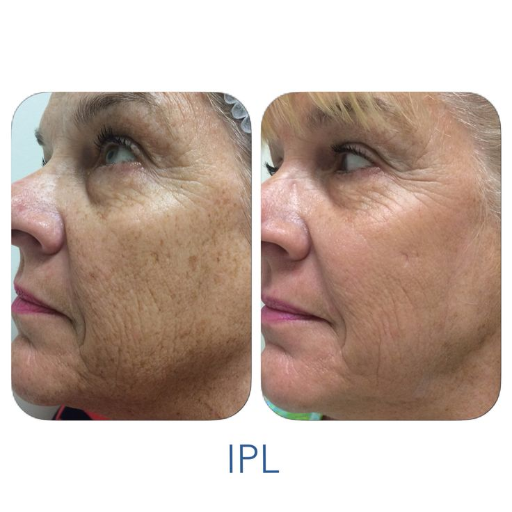 17 Best Images About Ipl On Pinterest Liver Spot Skin