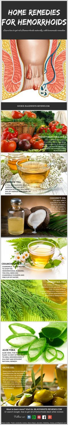 Hemorrhoids remedies for people who want to treat them at home. Learn how to get…