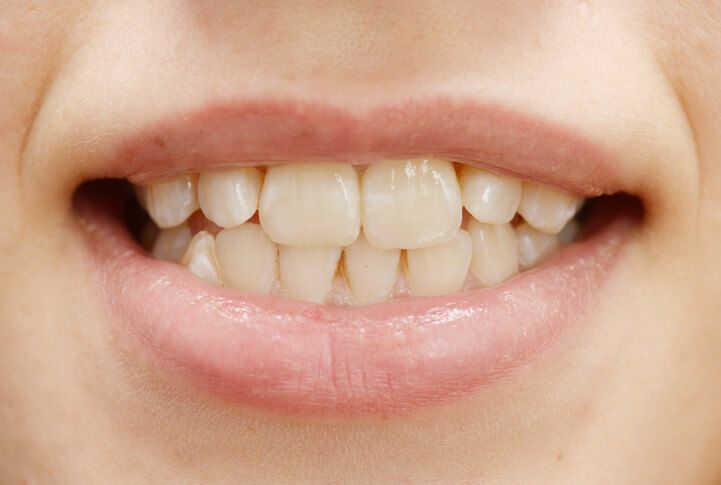 Tvrdí se, že tato metoda bělí zuby, udělá dech z úst svěžejší a celkově vede k masivnímu zlepšení orální hygieny. Osobně to dělám už 10 dnů a s výsledkem jsem nadmíru spokojena. Co je proplachování úst olejem a jak funguje? Jde o indickou lidovou medicínu, která existuje již tisíce let. Je založena na tom, že …