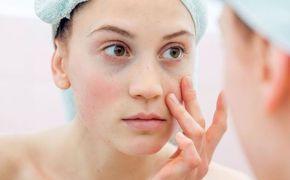 Η χαλάρωση του δέρματος κάτω ή γύρω από τα μάτια μπορεί να σας κάνει να φαίνεστε πολύ μεγαλύτεροι από ό,τι είστε στην πραγματικότητα. Ο καλύτερος τρόπος για την καταπολέμηση αυτού του φαινομένου είναι με φυσική φροντίδα.