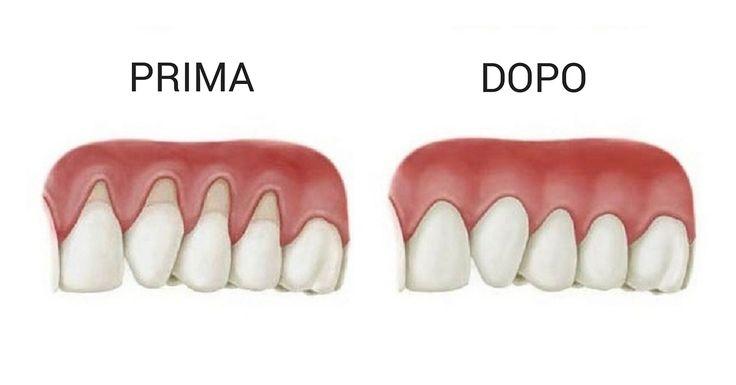 Laretrazionegengivale si verifica quando il tessuto della gengiva attorno aidenti si corrode e le gengive retrocedono all'indietro. Quando questo si verifica la superficie del dente o dei denti, se si parla di una parte gengivale più estesa, è più esposta e visibile. Quando le gengive risalgono, lo spazio tra la linea della gengivae i denti aumenta ed è proprio quello spazio ideale alla proliferazione batterica. Un altro problema che può accadere è che l'esposizione dellaradice del…