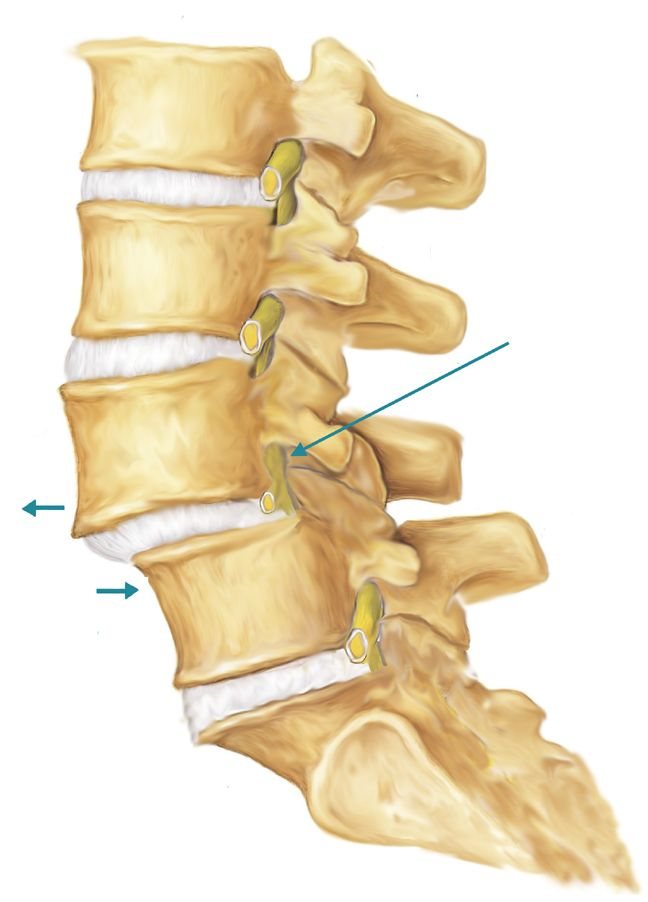 acquired spondylolisthesis - Google Search