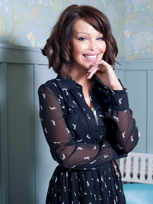 Role model: Gutsy Katie Piper fought back and used the attack to achieve great things