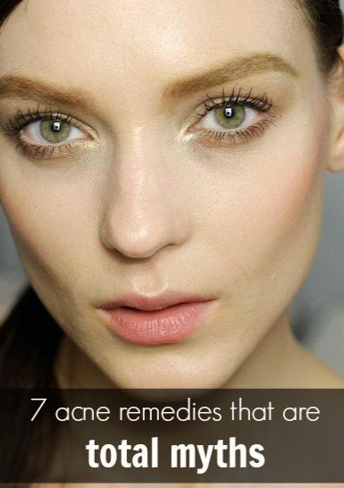 Basic Facts About Acne