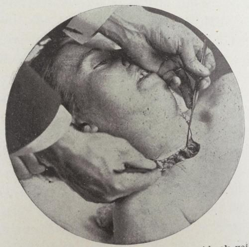 Les 53 Meilleures Images Du Tableau Embalming-anatomy