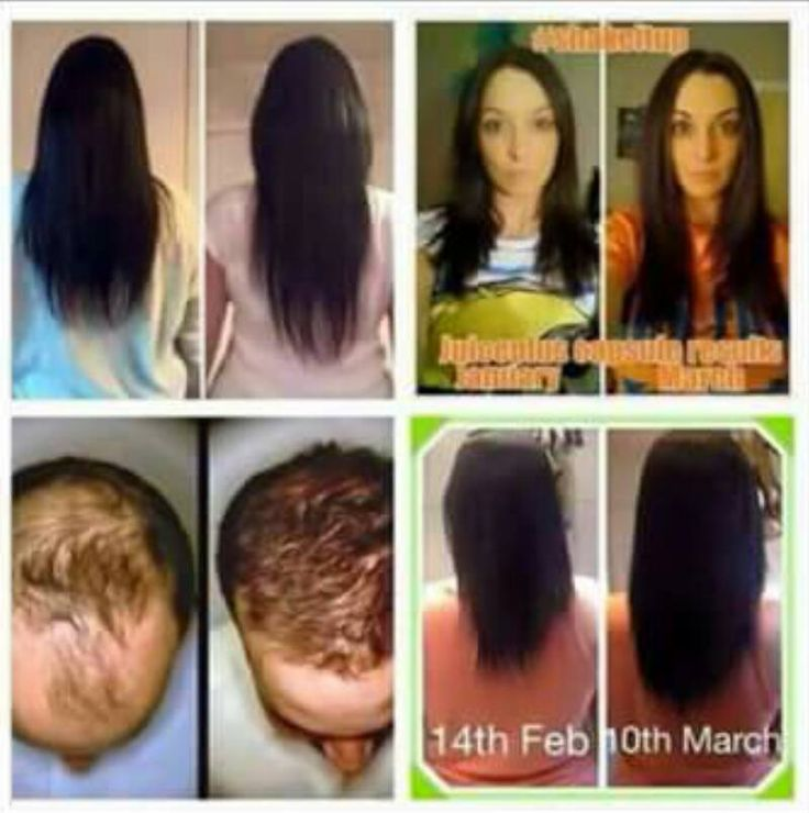 Nail Growth Hair And Nails Juice Plus Berry Amazing Faces Products Facebook Healthy Living