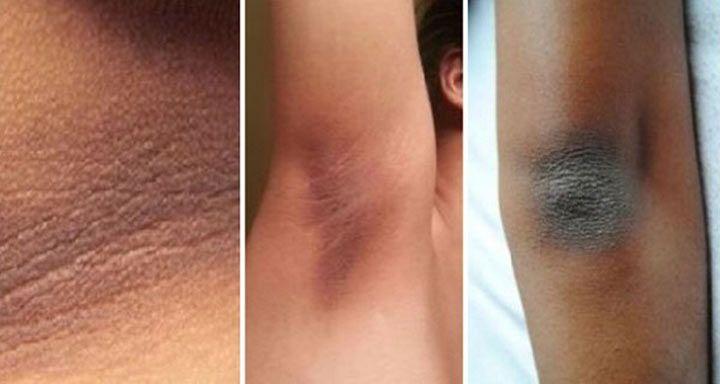 Темные участки кожи на локтях, коленях и вокруг шеи являются настоящим эстетическим кошмаром для некоторых людей. В этих областях кожа более плотная, приток крови к ней плохо поступает и…