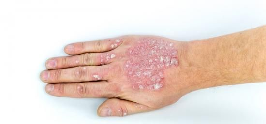 Psoriasis: Seven Ways To Ditch The Itch At Home