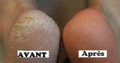 Voici 8 remèdes simples pour les pieds secs et les talons fendillés Ces remèdes…