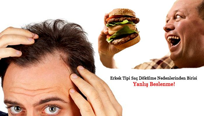 Erkek Tipi Sac Dokulme Nedenlerinden Birisi Yanlis Beslenme Sac