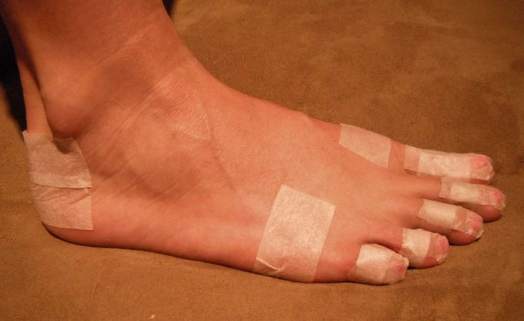 The pre-taping procedure in the above study (image credit)