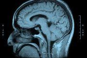Omega-3 fatty acids enhance cognitive flexibility in at-risk older adults