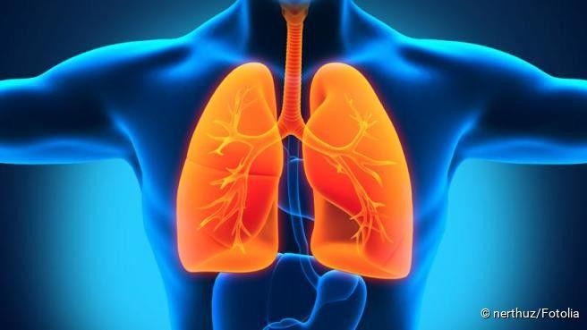 Tuberkulose...Die Tuberkulose (kurz: Tbc oder Tb) ist eine Infektionskrankheit, die durch Bakterien verursacht wird. Sie werden hauptsächlich auf dem Luftweg übertragen. Daher ist in der Regel die Lunge betroffen. Allerdings gibt es verschiedene Verlaufsformen der Tuberkulose. Heutzutage ist die Tuberkulose heilbar, doch es gibt auch schwere Komplikationen. Diese können vor allem bei immungeschwächten Menschen zum Tod führen. Erfahren Sie hier alles Wichtige über die Tuberkulose.
