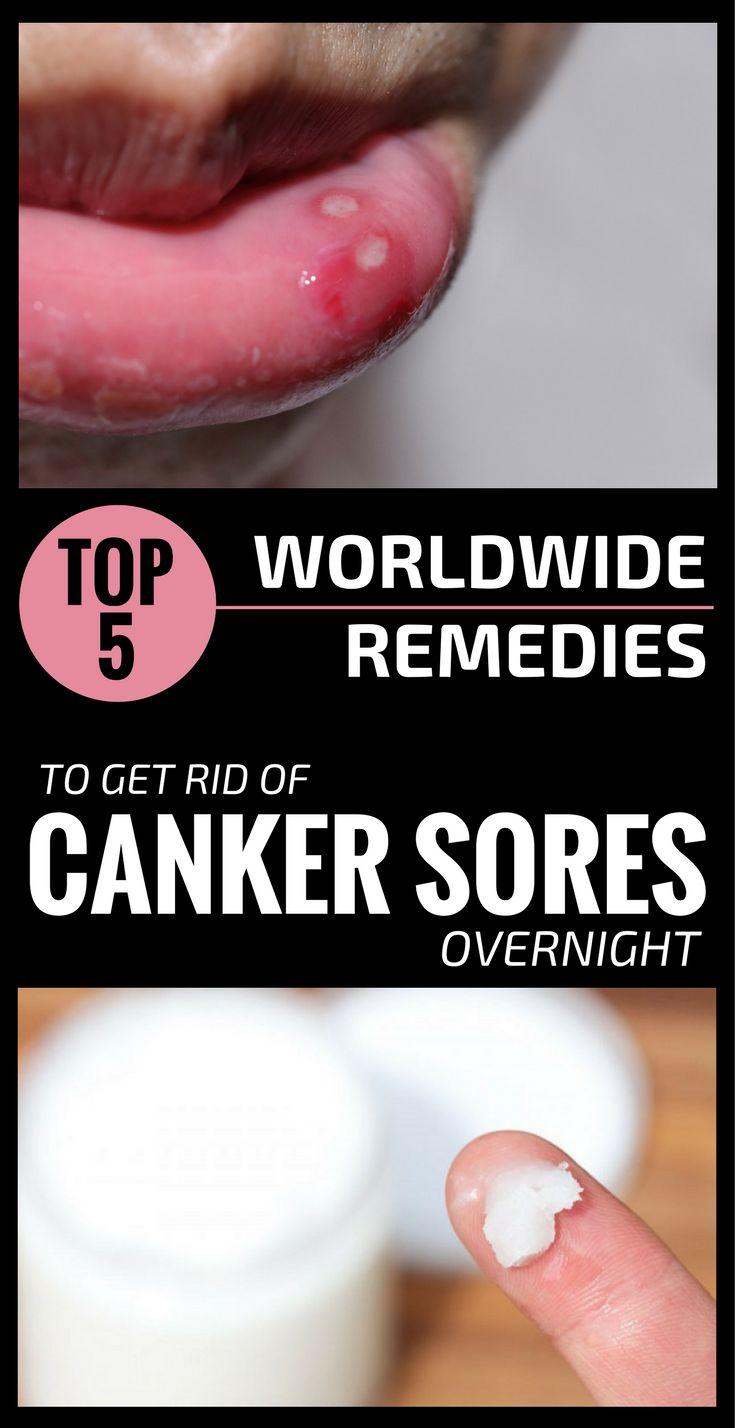 Valtrex Dosage For Canker Sores