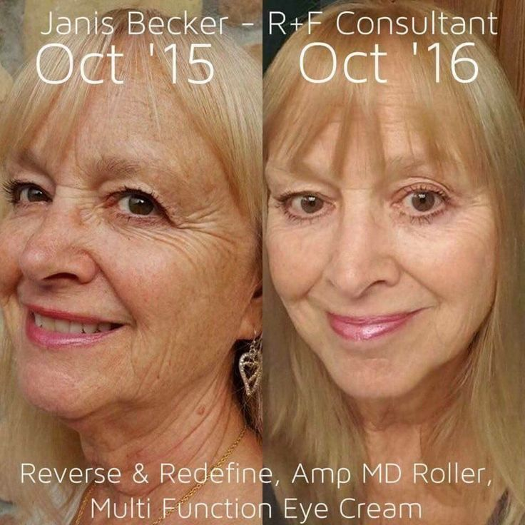 Talk about aging backwards !!   Love Rodan and Fields as their products are proven and guaranteed to work!   What other skincare company offers a 60 day money back guarantee?   Also, any happy custome