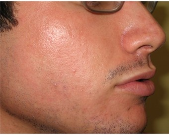 Intense Pulsed Light for Acne LaDermique 413-786-3376