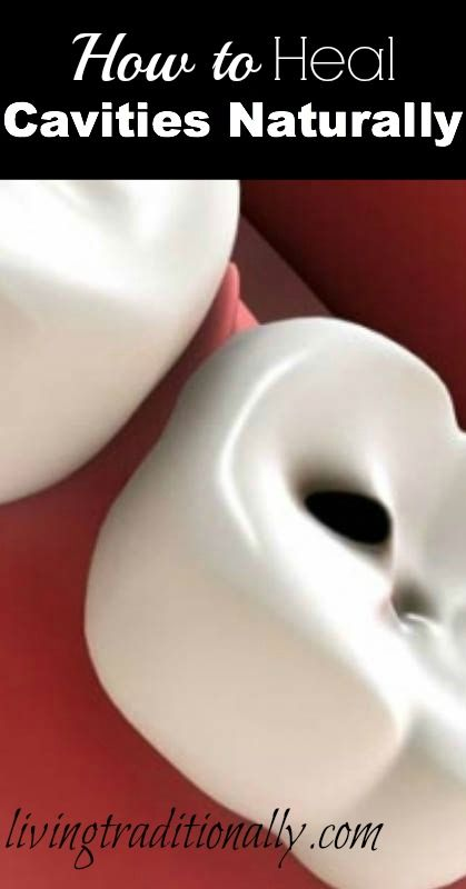 """How to Heal Cavities Naturally - actually, it's more like """"Why cavities exist and how to help your teeth be stronger naturally"""" Good article"""