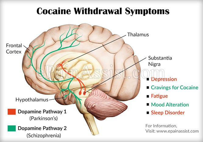 Cocaine Addiction Rehabilitation & How to Manage Cocaine Withdrawal Symptoms #CocaineAddictionRehabilitation #Cocaine #AddictionAndRehab #brain #drug #NAC #health #AddictionRecovery #AlcoholAddiction #drugs #cocaineabuse #alcohol #ePainAssist Read: http://www.epainassist.com/addiction-and-rehab/cocaine-addiction-rehabilitation-and-how-to-manage-cocaine-withdrawal-symptoms