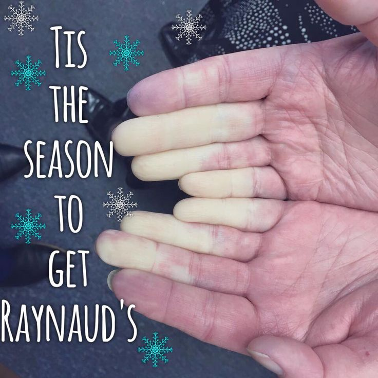 best 20+ crest syndrome ideas on pinterest | raynaud's disease, Cephalic Vein