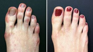 pinky toe tuck operation #Plastic #Surgery