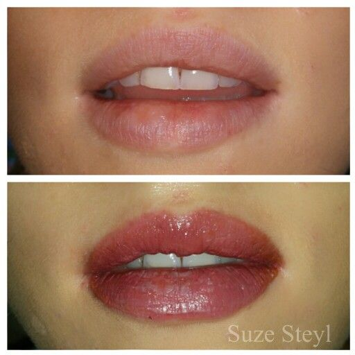 before and after full lips