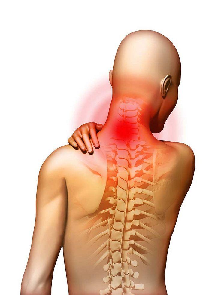 Расскажу, как вылечить шейный остеохондроз и навсегда избавиться от боли в шее   Женский уголок   Яндекс Дзен