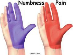7 Signs of Carpal Tunnel Syndrome: Tingling & Numbness