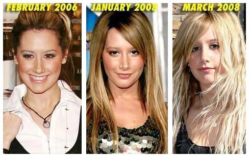 Chatter Busy: Ashley Tisdale Nose Job Before After