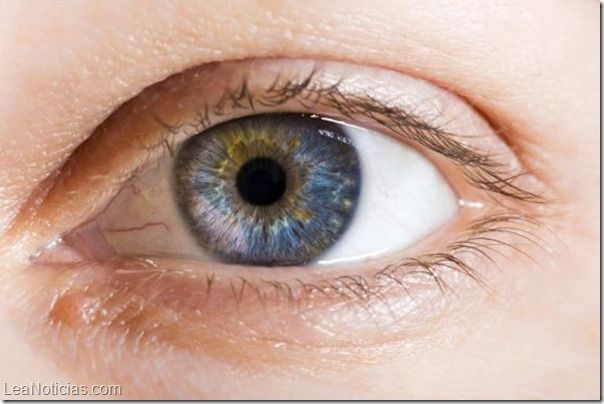 ¿Por qué una persona puede tener ojos de diferente color? - http://www.leanoticias.com/2014/01/13/por-que-una-persona-puede-tener-ojos-de-diferente-color/