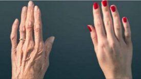A 70 ans, ses mains ressemblent à celles d'une femme dans la quarantaine ! Cette recette a changé sa vie …