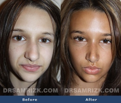 Before And After Photo Of A 13 Year Old Female Patient Who
