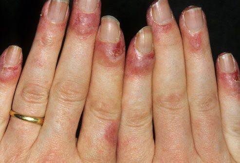 Lupus symptoms, skin rashes, joint pain, causes, diagnosis, and treatments are explained with pictures in this slideshow from WebMD's medical editors.