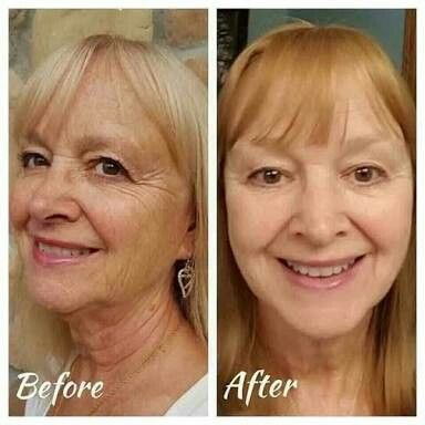 The R+F Reverse Regimen can help with all skin types and ages!! gwendab2@gmail.com
