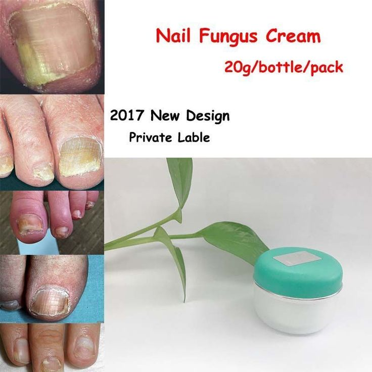 2 packs toe Nail fungus removal/ fungal nail  infection / Onychomycosis  chinese herbs good restult nail fungus treatment