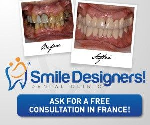 Flash and gif adWords banner design wanted for Smile Designers by Gergely.ifi