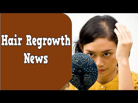 Hair Regrowth News  Castor Oil For Hair Regrowth  How To Stop Dht Hair Loss  Mens Hair Regrowth