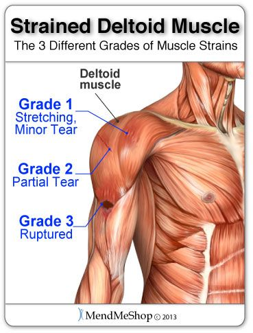 Overuse, repetitive motion or an unnatural twisting of the shoulder are causes of shoulder strain. Description from mendmyknee.com. I searched for this on bing.com/images