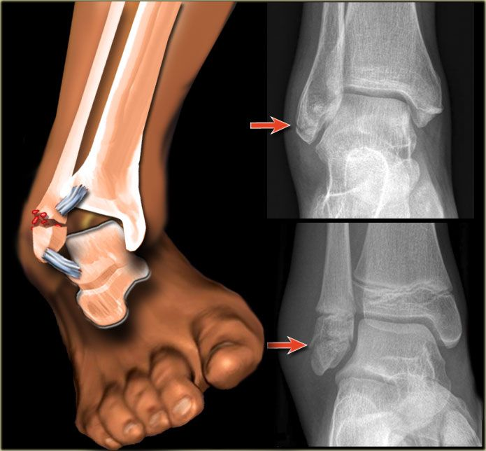 Pain, swelling, bruising, and difficulty bearing weight or walking on the affected foot or ankle are the most common symptoms of a sprained or fractured foot or ankle.